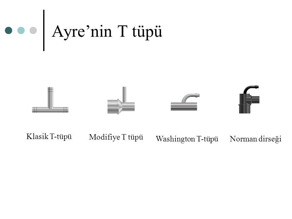 Ayre'nin T tüpü Klasik T-tüpü Washington T-tüpü Norman dirseği