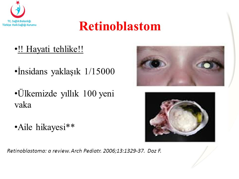 Retinoblastom !! Hayati tehlike!! İnsidans yaklaşık 1/15000