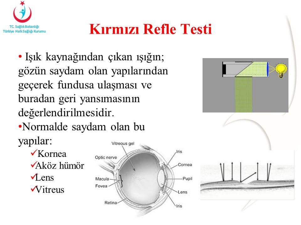 Kırmızı Refle Testi
