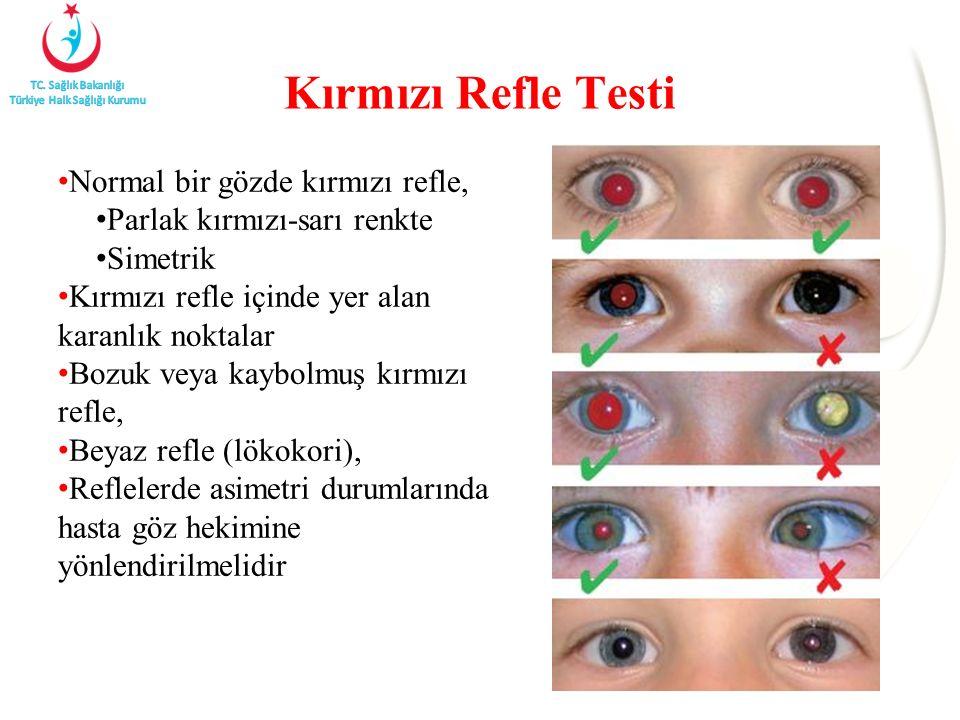 Kırmızı Refle Testi Normal bir gözde kırmızı refle,