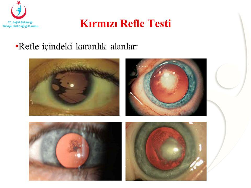 Kırmızı Refle Testi Refle içindeki karanlık alanlar: