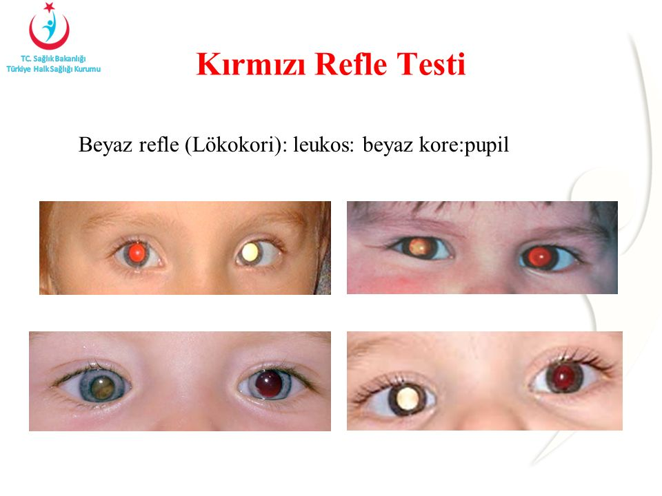 Kırmızı Refle Testi Beyaz refle (Lökokori): leukos: beyaz kore:pupil