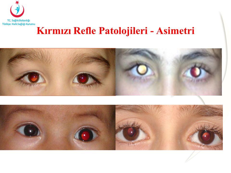 Kırmızı Refle Patolojileri - Asimetri