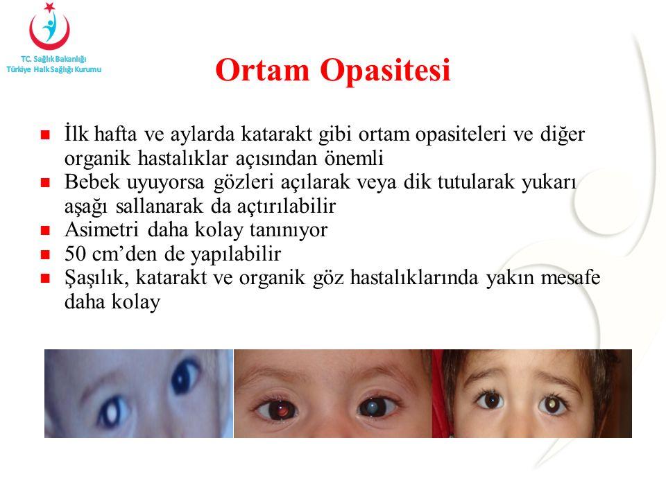 Ortam Opasitesi İlk hafta ve aylarda katarakt gibi ortam opasiteleri ve diğer organik hastalıklar açısından önemli.