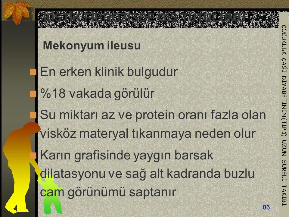 KİSTİK FİBROZİSDE GİS TUTULUMU Mekonyum ileusu