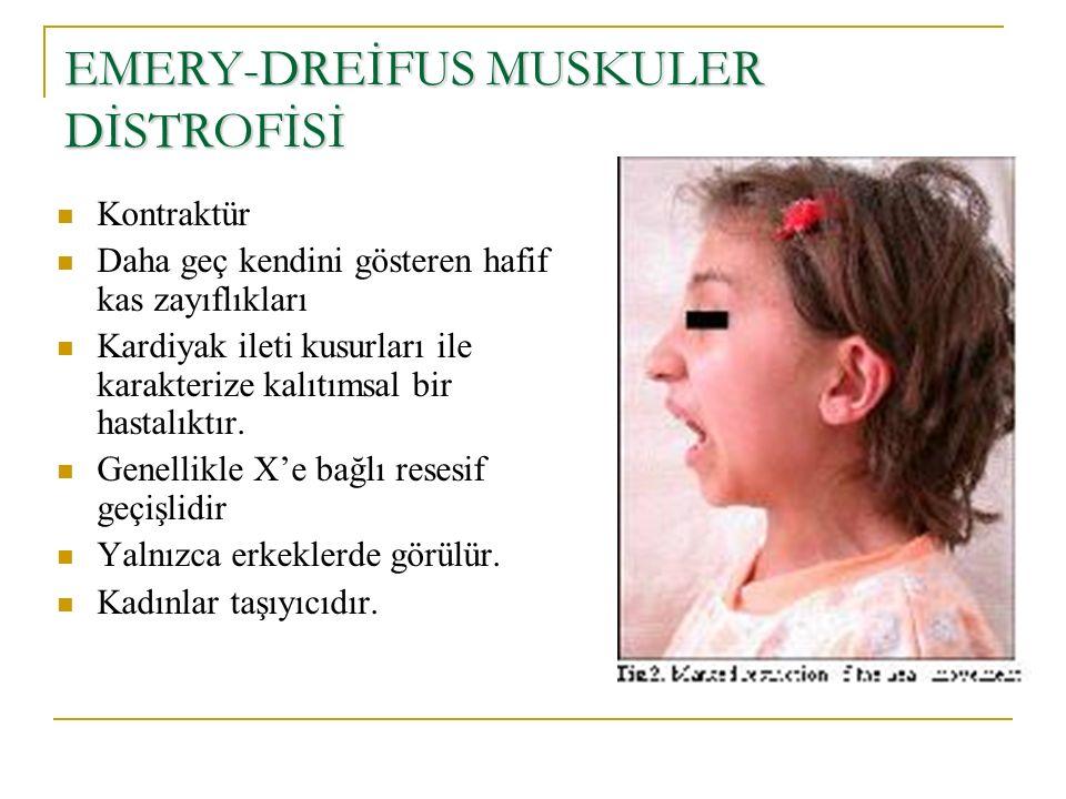 EMERY-DREİFUS MUSKULER DİSTROFİSİ