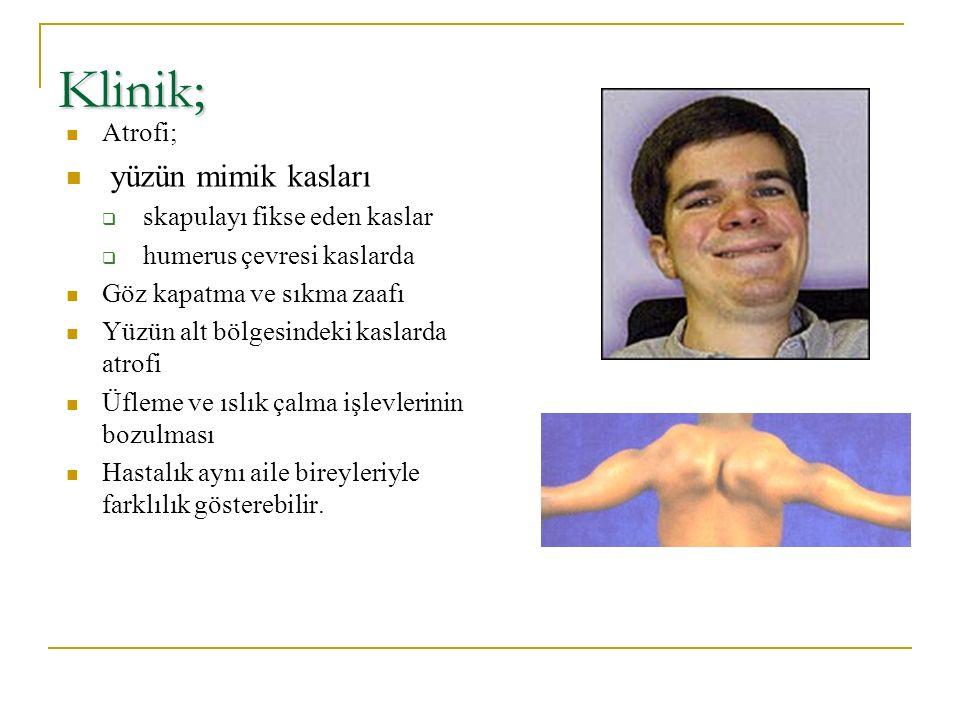 Klinik; yüzün mimik kasları Atrofi; skapulayı fikse eden kaslar
