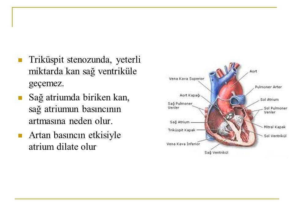 Triküspit stenozunda, yeterli miktarda kan sağ ventriküle geçemez.