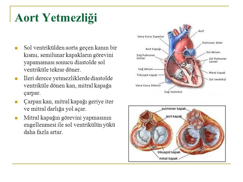 Aort Yetmezliği Sol ventrikülden aorta geçen kanın bir kısmı, semilunar kapakların görevini yapamaması sonucu diastolde sol ventriküle tekrar döner.