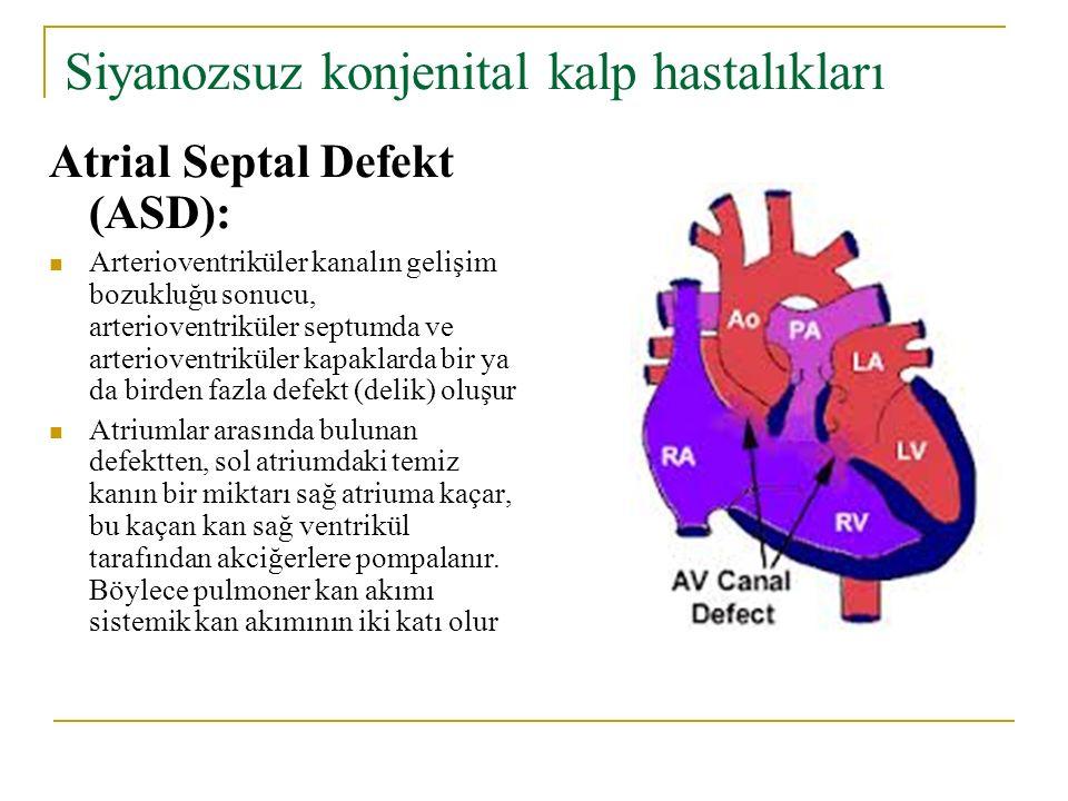 Siyanozsuz konjenital kalp hastalıkları