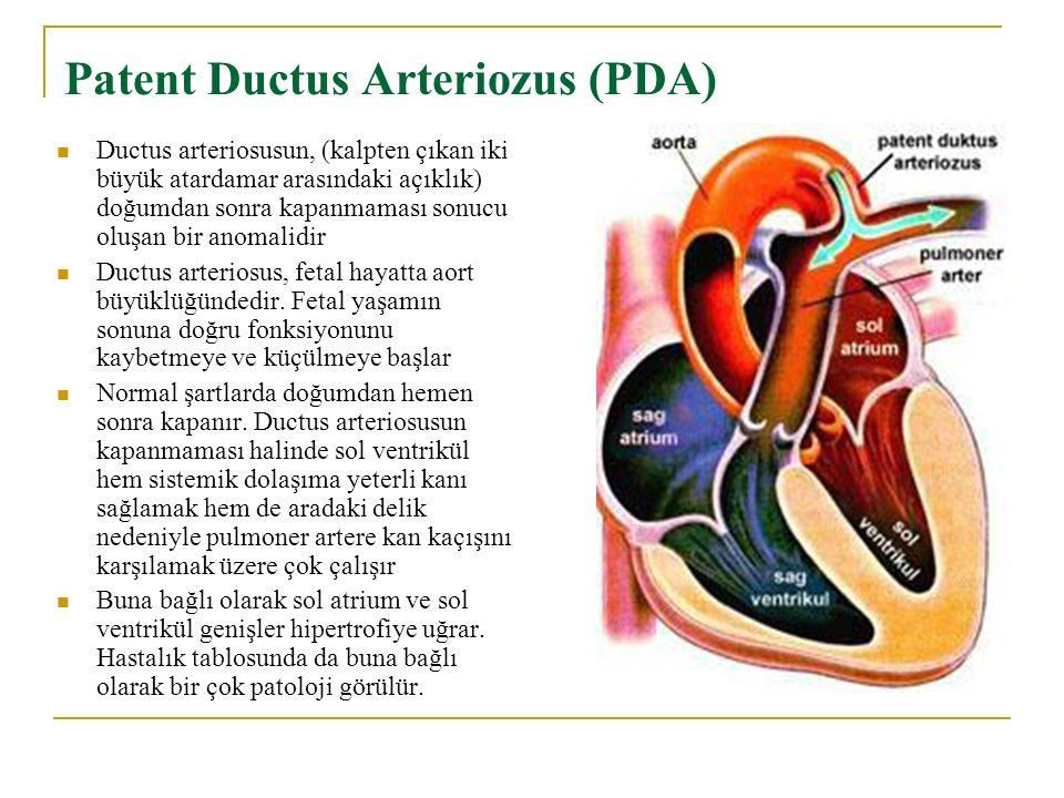 Patent Ductus Arteriozus (PDA)