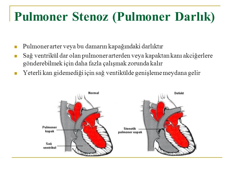 Pulmoner Stenoz (Pulmoner Darlık)