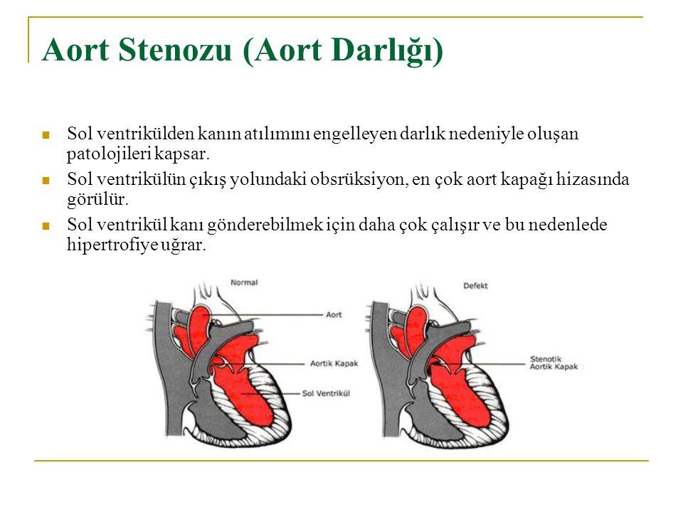 Aort Stenozu (Aort Darlığı)