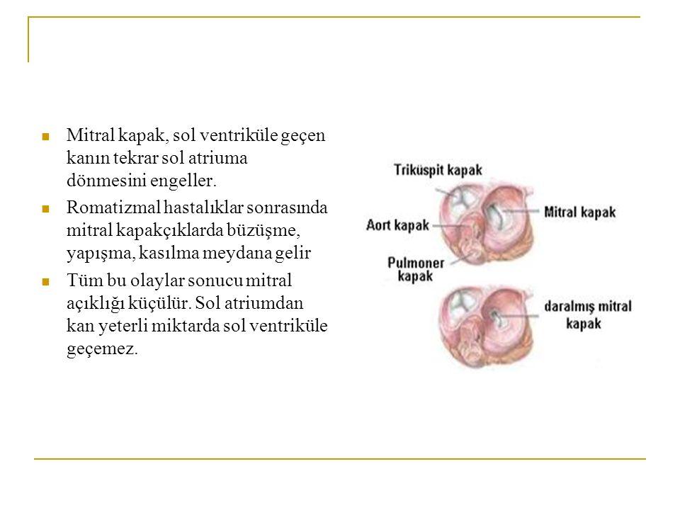 Mitral kapak, sol ventriküle geçen kanın tekrar sol atriuma dönmesini engeller.