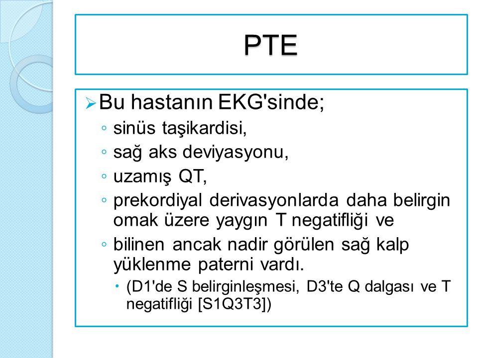 PTE Bu hastanın EKG sinde; sinüs taşikardisi, sağ aks deviyasyonu,