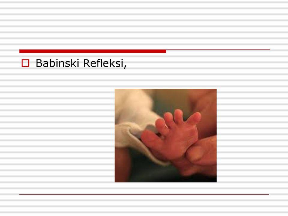 Babinski Refleksi,