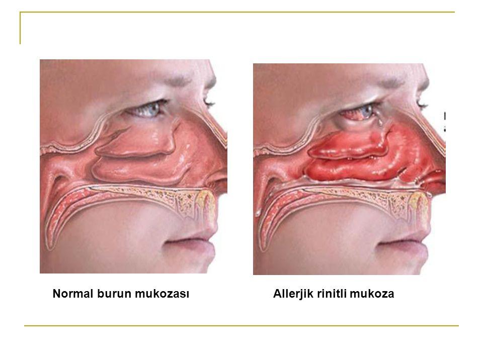 Normal burun mukozası Allerjik rinitli mukoza