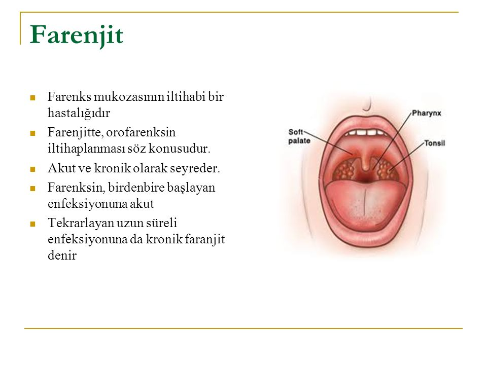 Farenjit Farenks mukozasının iltihabi bir hastalığıdır