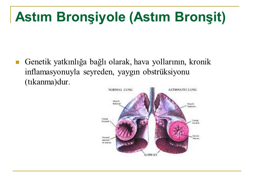 Astım Bronşiyole (Astım Bronşit)