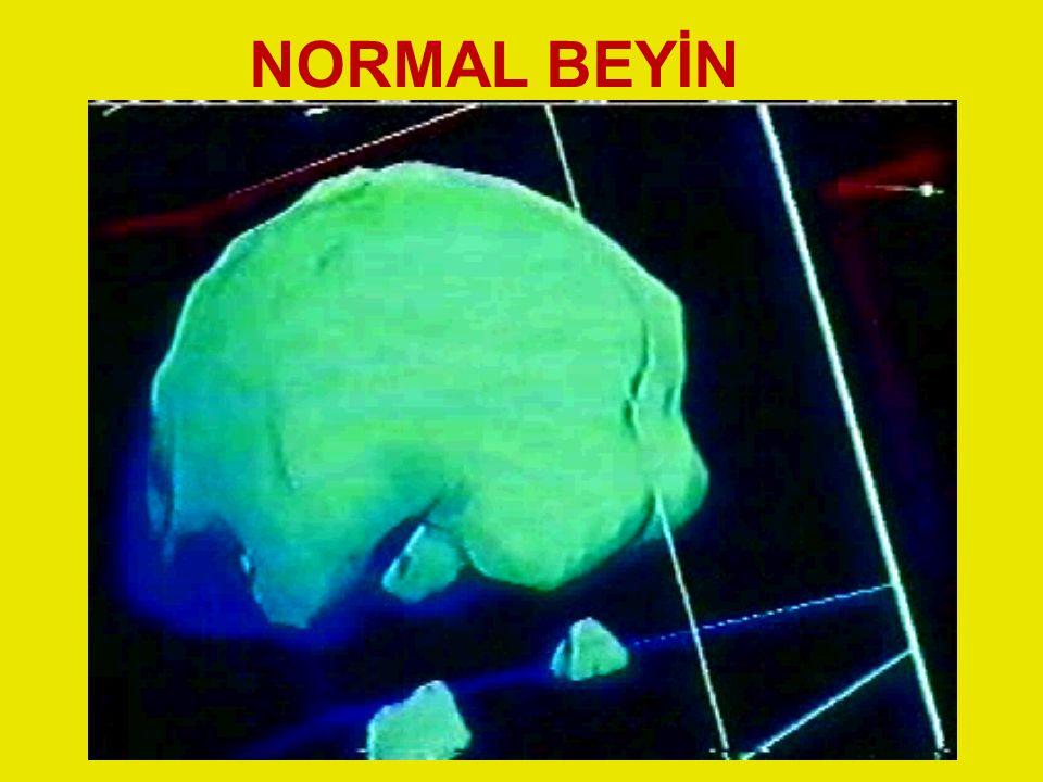 NORMAL BEYİN