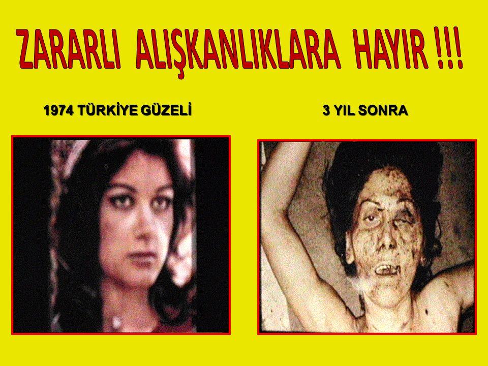 ZARARLI ALIŞKANLIKLARA HAYIR !!!