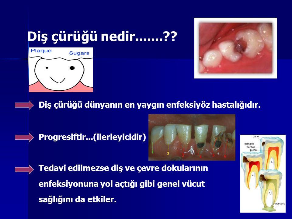 Diş çürüğü nedir....... Diş çürüğü dünyanın en yaygın enfeksiyöz hastalığıdır. Progresiftir...(ilerleyicidir)
