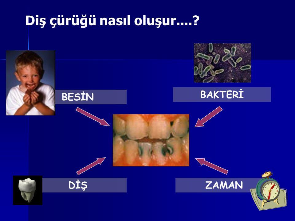 Diş çürüğü nasıl oluşur....