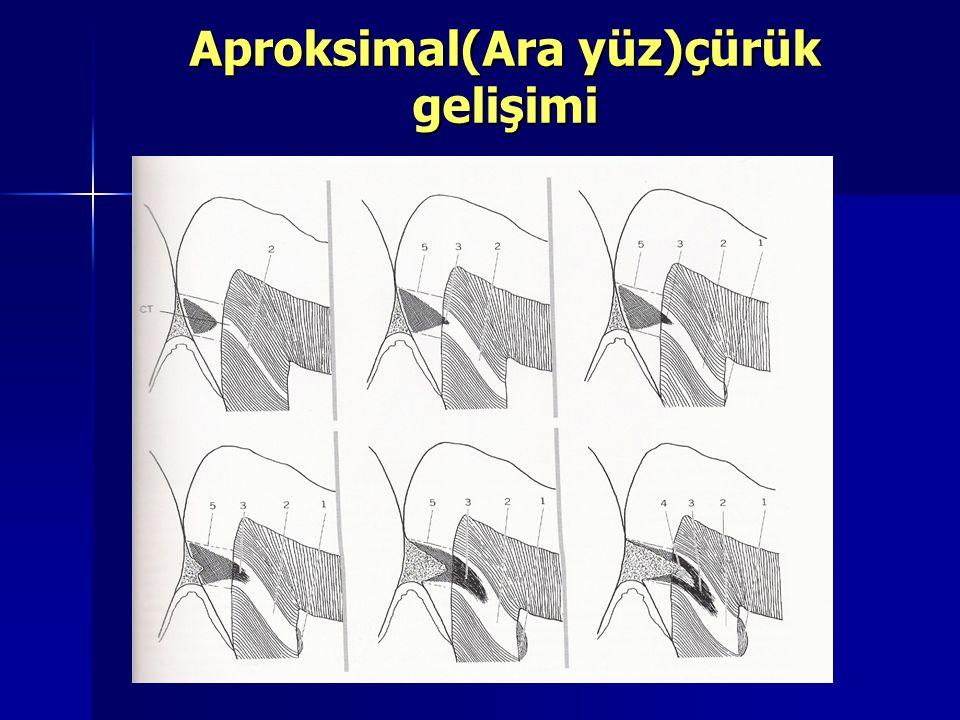 Aproksimal(Ara yüz)çürük gelişimi