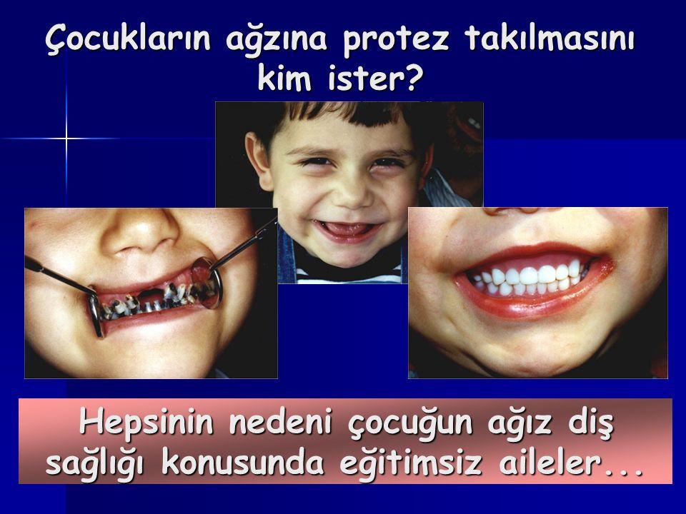 Çocukların ağzına protez takılmasını kim ister