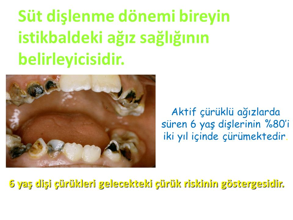 Süt dişlenme dönemi bireyin istikbaldeki ağız sağlığının belirleyicisidir.