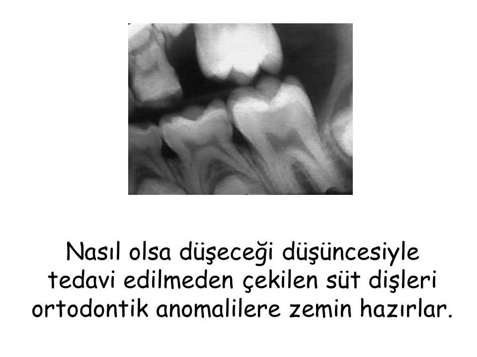 Nasıl olsa düşeceği düşüncesiyle tedavi edilmeden çekilen süt dişleri ortodontik anomalilere zemin hazırlar.