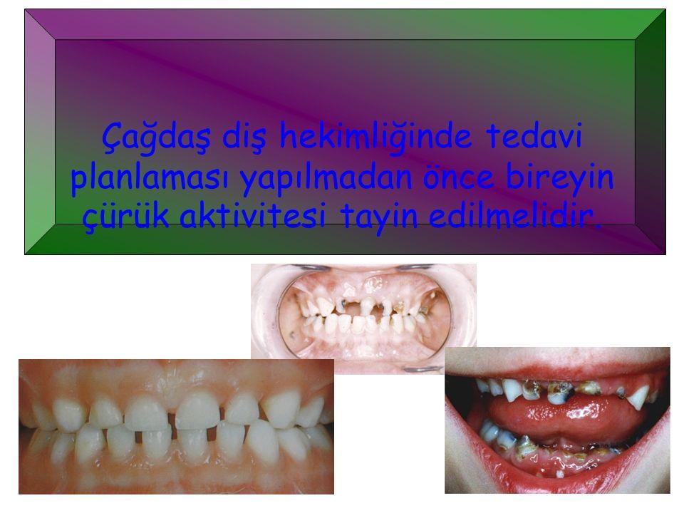 Çağdaş diş hekimliğinde tedavi planlaması yapılmadan önce bireyin çürük aktivitesi tayin edilmelidir.