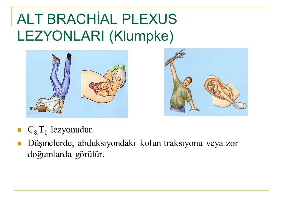 ALT BRACHİAL PLEXUS LEZYONLARI (Klumpke)