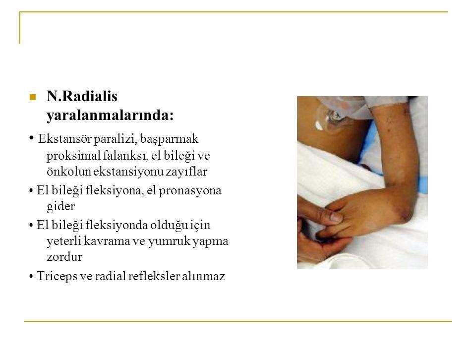 N.Radialis yaralanmalarında: