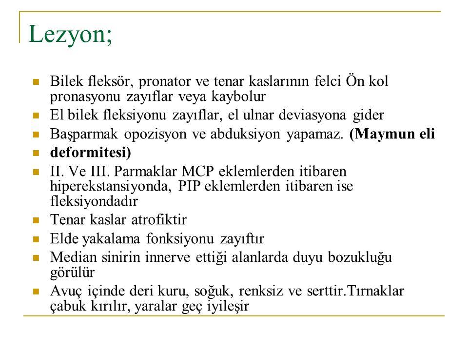 Lezyon; Bilek fleksör, pronator ve tenar kaslarının felci Ön kol pronasyonu zayıflar veya kaybolur.