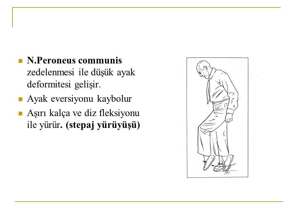 N.Peroneus communis zedelenmesi ile düşük ayak deformitesi gelişir.