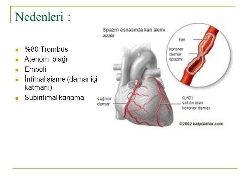 Nedenleri : %80 Trombüs Atenom plağı Emboli