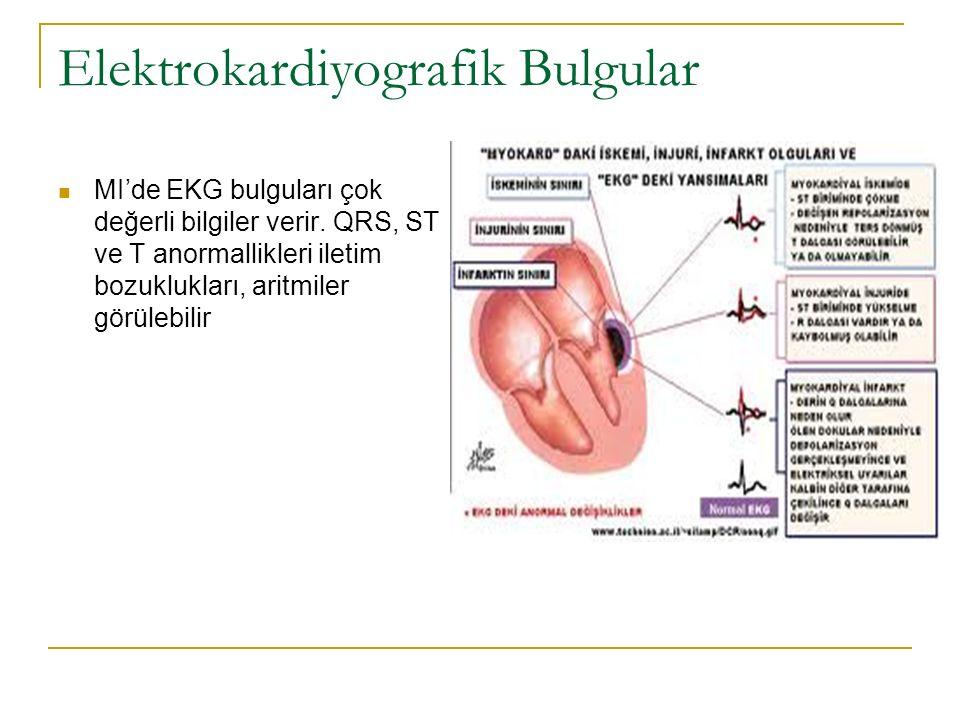 Elektrokardiyografik Bulgular