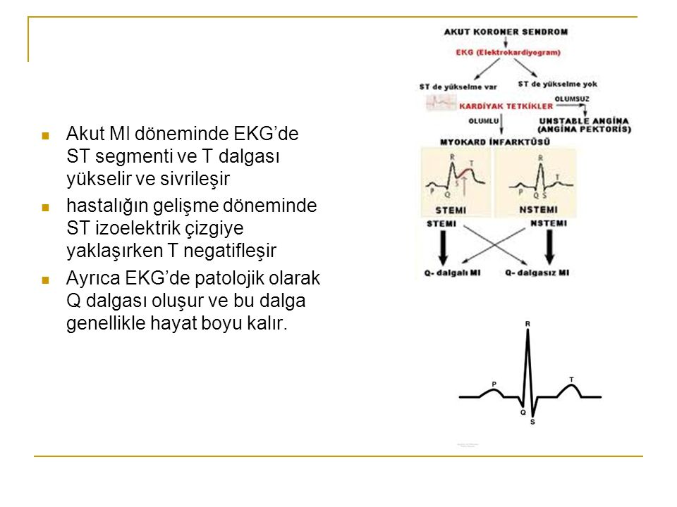 Akut MI döneminde EKG'de ST segmenti ve T dalgası yükselir ve sivrileşir