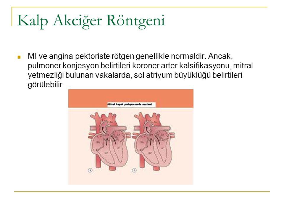 Kalp Akciğer Röntgeni