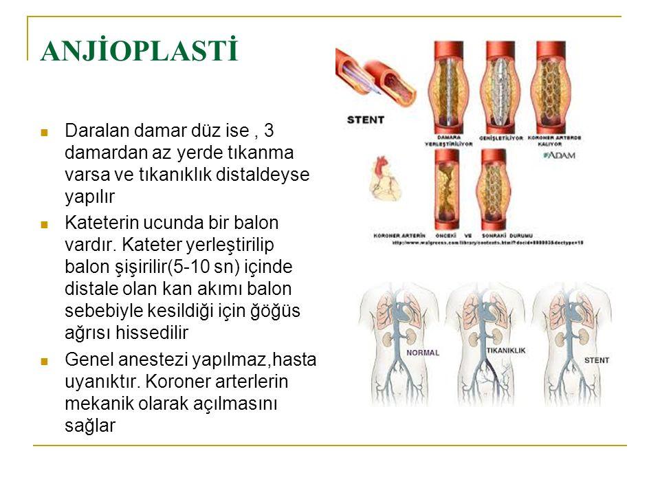 ANJİOPLASTİ Daralan damar düz ise , 3 damardan az yerde tıkanma varsa ve tıkanıklık distaldeyse yapılır.