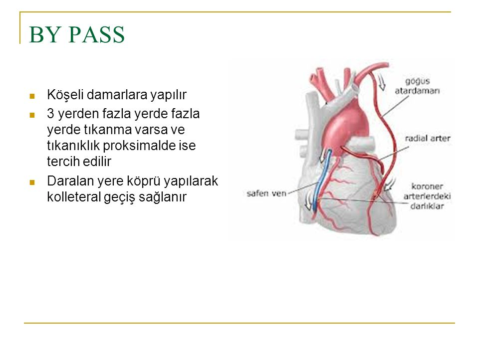 BY PASS Köşeli damarlara yapılır