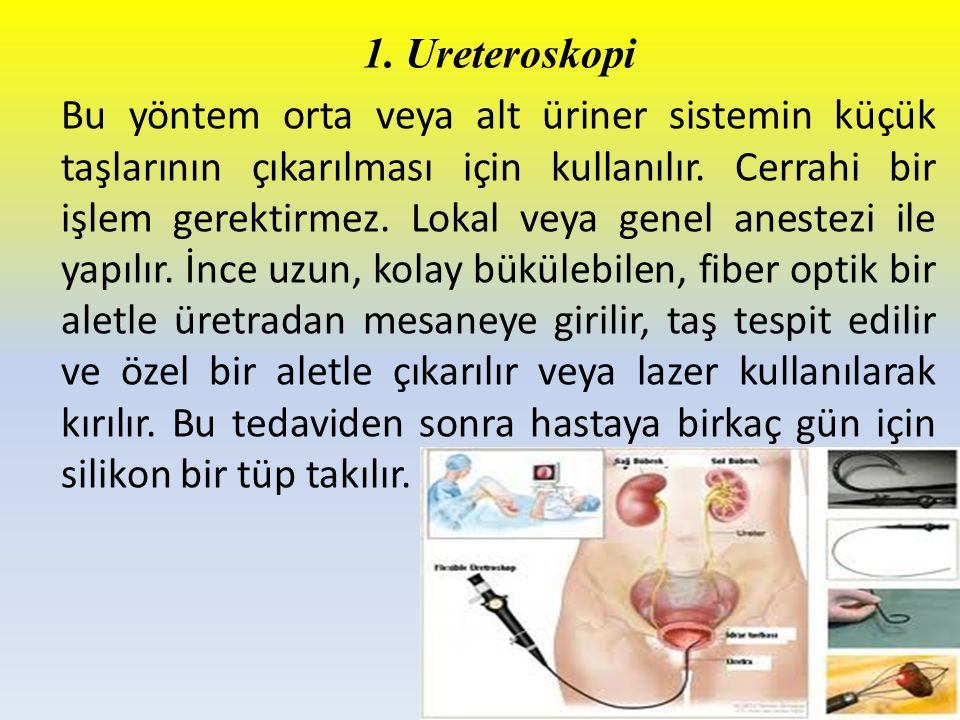 1. Ureteroskopi