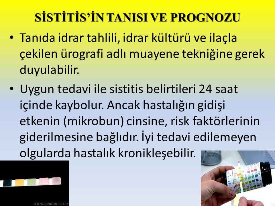 SİSTİTİS'İN TANISI VE PROGNOZU