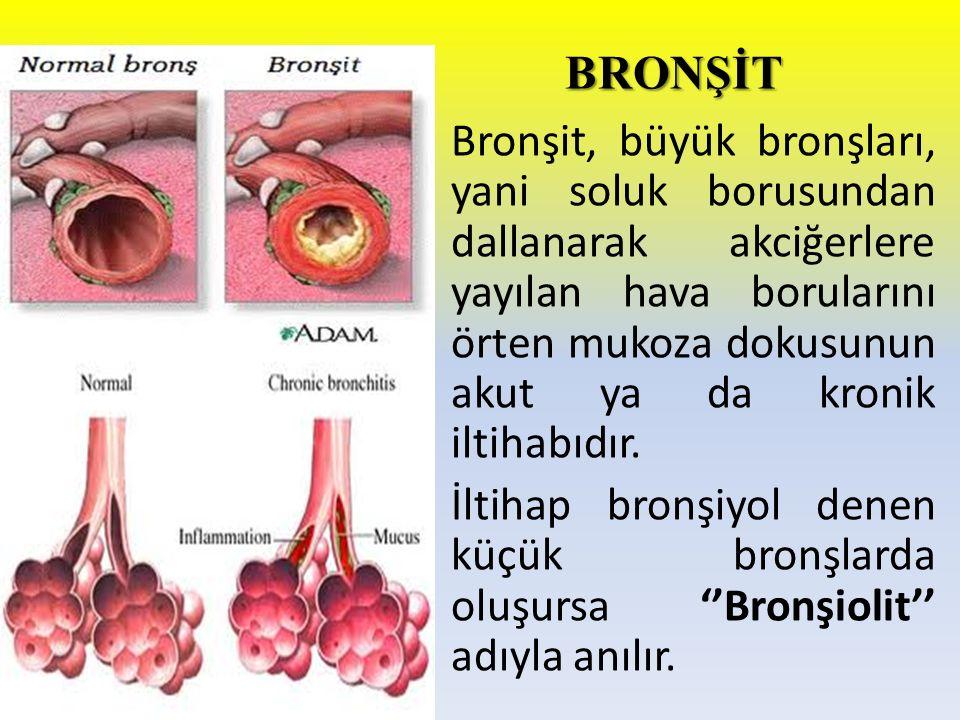 BRONŞİT