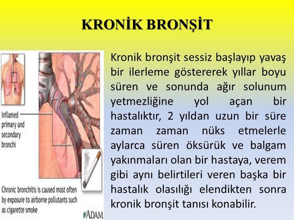 KRONİK BRONŞİT