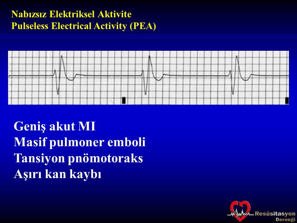 Geniş akut MI Masif pulmoner emboli Tansiyon pnömotoraks