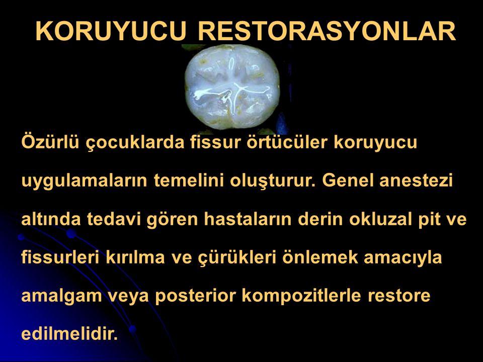 KORUYUCU RESTORASYONLAR