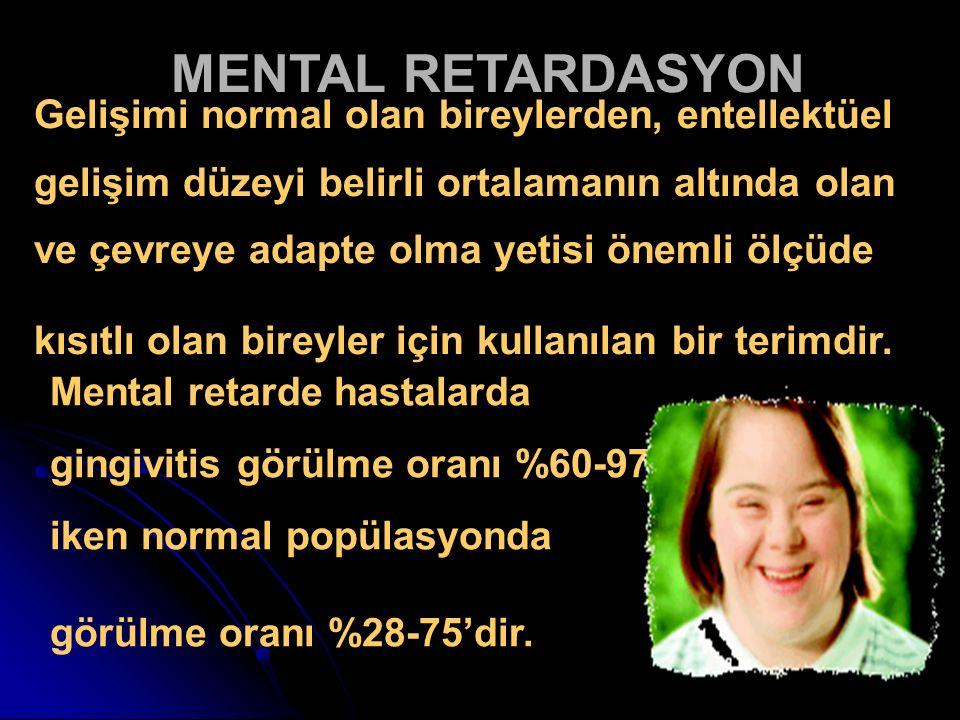 MENTAL RETARDASYON