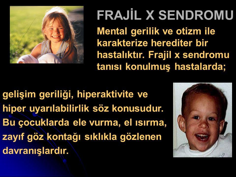 FRAJİL X SENDROMU Mental gerilik ve otizm ile karakterize herediter bir hastalıktır. Frajil x sendromu tanısı konulmuş hastalarda;